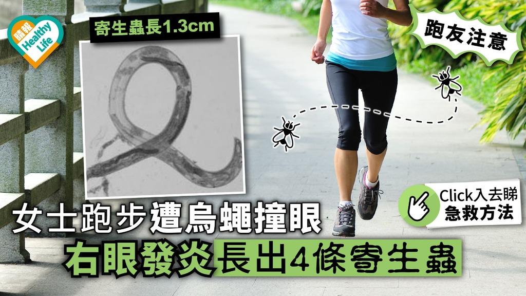 女士跑步遭烏蠅撞眼 右眼發炎 長出4條寄生蟲【附醫生專業意見】