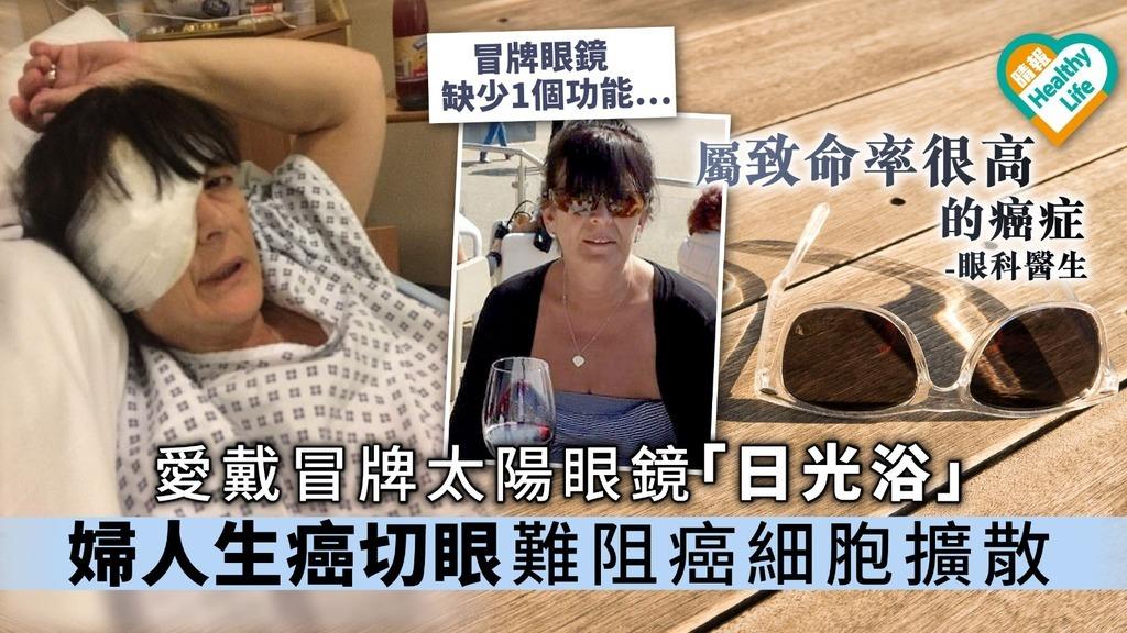 愛戴冒牌太陽眼鏡「日光浴」婦人生癌切眼難阻癌細胞擴散