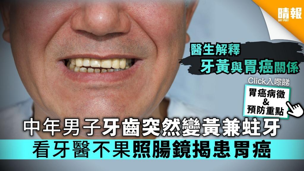 中年漢牙齒突變黃兼蛀牙 看牙醫不果照腸鏡揭患胃癌【附胃癌病徵&預防重點】