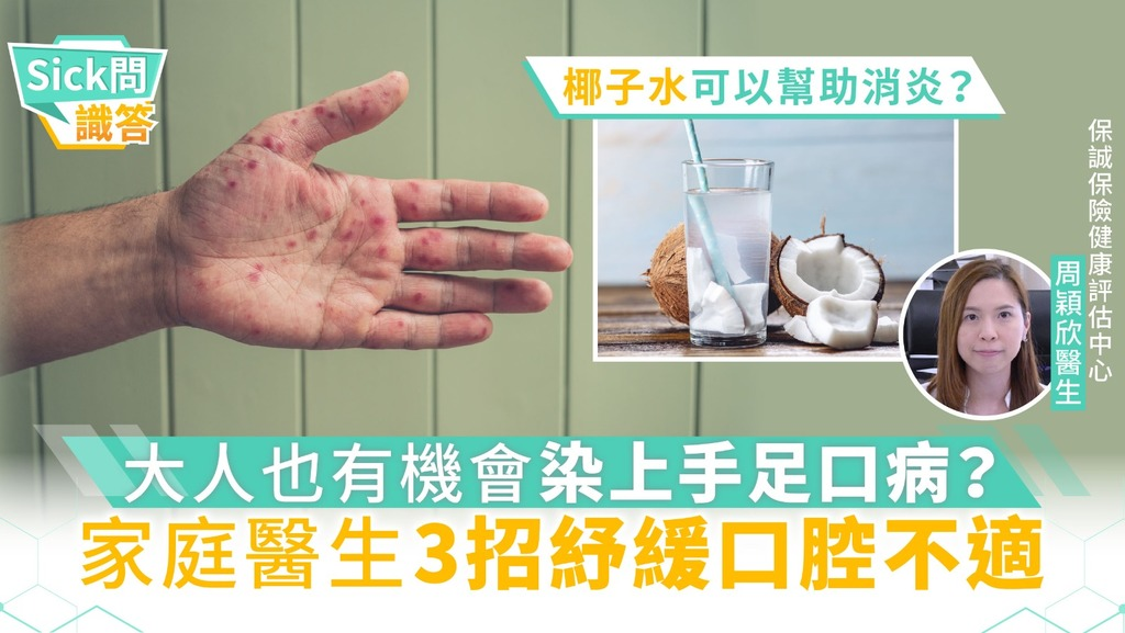 【Sick問識答】大人也有機會染上手足口病?家庭醫生3招紓緩口腔不適