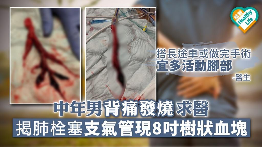 中年男背痛發燒求醫 揭肺栓塞支氣管現8吋樹狀血塊