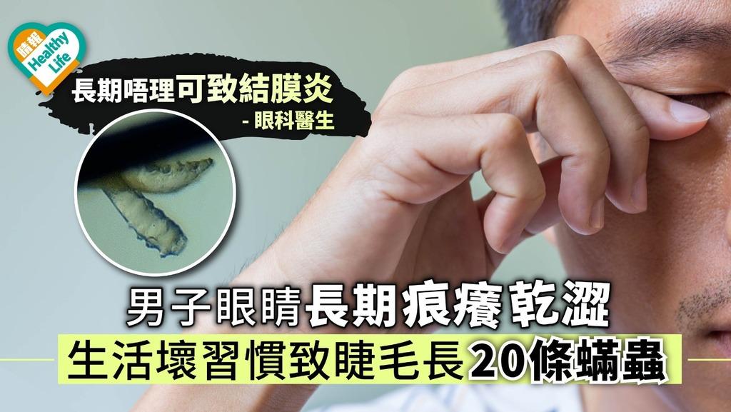 男子眼睛痕癢乾澀疑有異物 生活壞習慣致睫毛長20條蟎蟲【附醫生解說】
