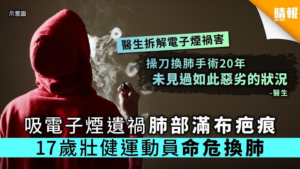 吸電子煙肺部滿布疤痕 17歲少年命危換肺【附電子煙危機解說】