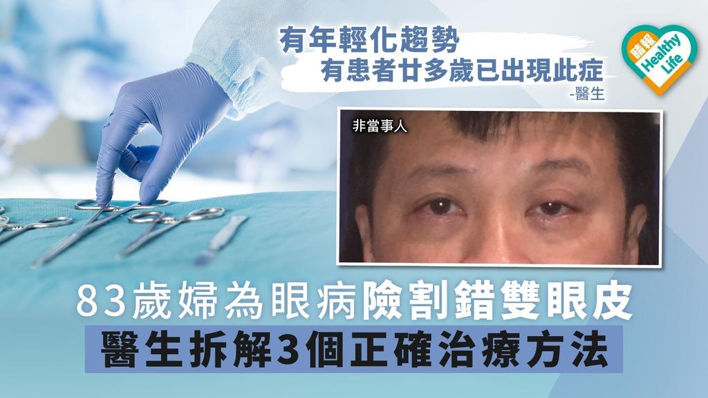 83歲婦為眼病險割錯雙眼皮 醫生拆解3個正確治療方法