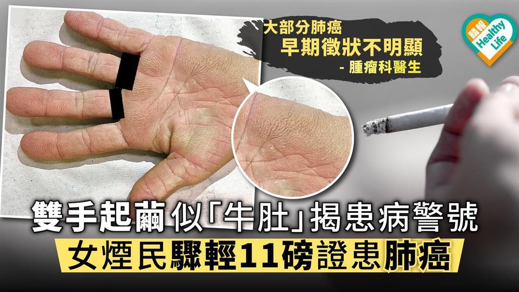 雙手起繭似「牛肚」揭患病警號 女煙民驟輕11磅證患肺癌
