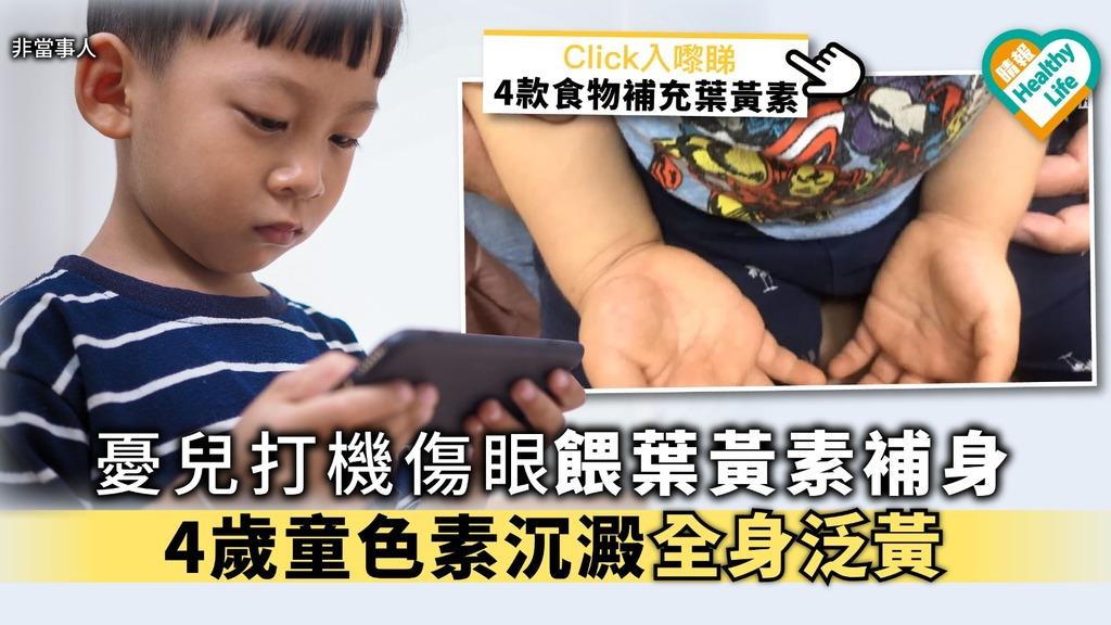 憂兒打機傷眼餵葉黃素補身 4歲童色素沉澱全身泛黃