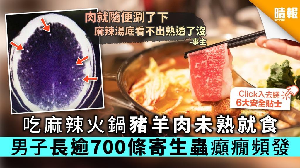 吃麻辣火鍋豬羊肉未熟就食 男子長逾700條寄生蟲癲癇頻發