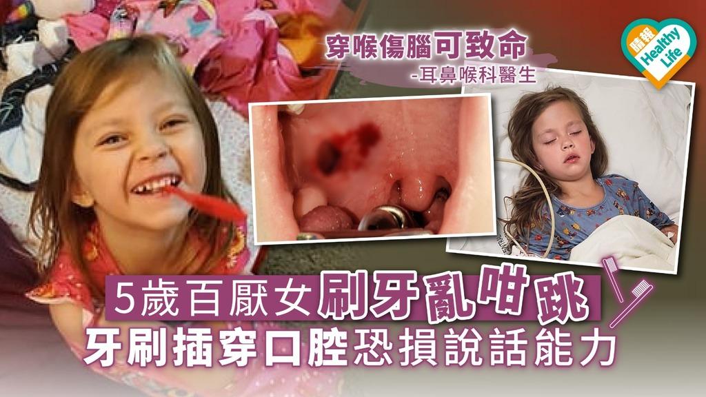 【家居意外】5歲百厭女刷牙亂咁跳 牙刷插穿口腔恐損說話能力