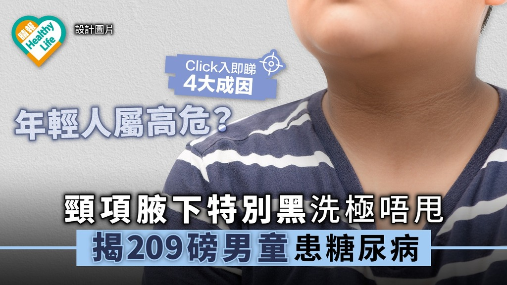 【糖尿病年輕化】頸項腋下特別黑洗極唔甩 揭209磅男童患糖尿病