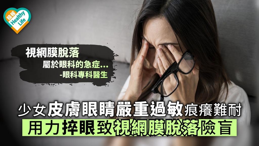 少女皮膚眼睛嚴重過敏痕癢難耐 用力捽眼致視網膜脫落險盲【附醫生解說】