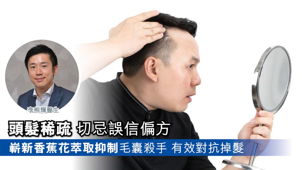 """「頭髮稀疏 忌信偏方 正視毛囊殺手DHT 有""""髪""""」"""
