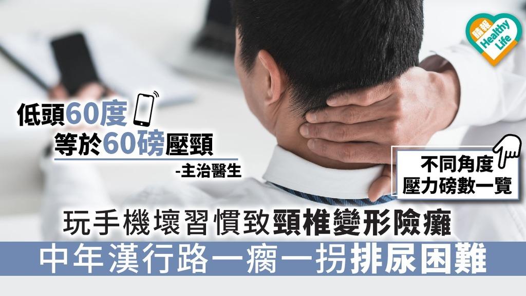 玩手機壞習慣致頸椎變形險癱 中年漢行路一瘸一拐排尿困難