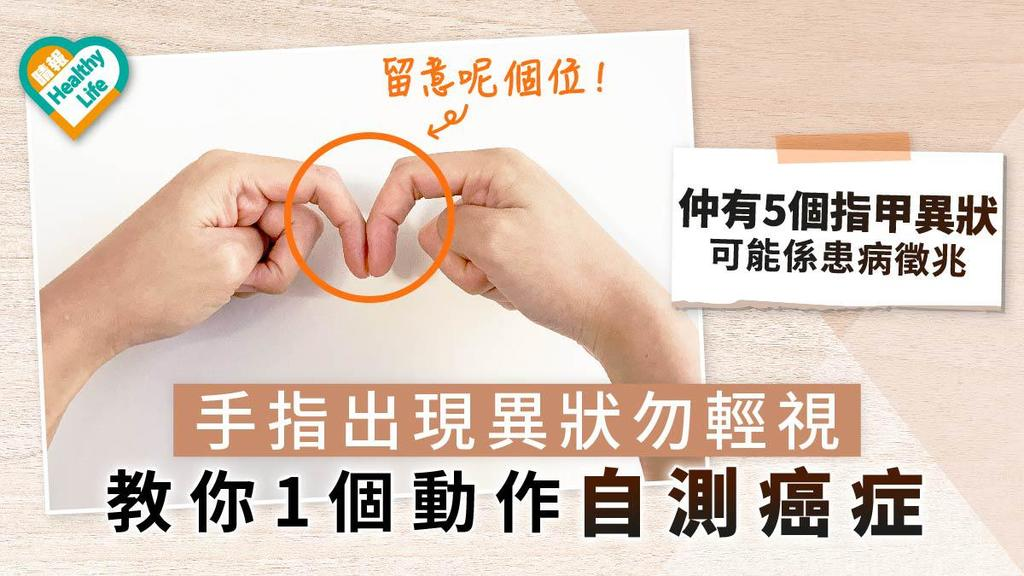 手指出現異狀勿輕視 教你1個動作自測癌症