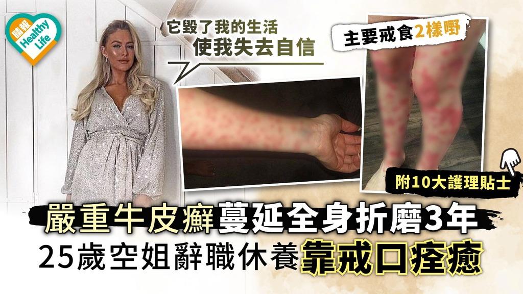 嚴重牛皮癬蔓延全身折磨3年 25歲空姐辭職休養靠戒口痊癒