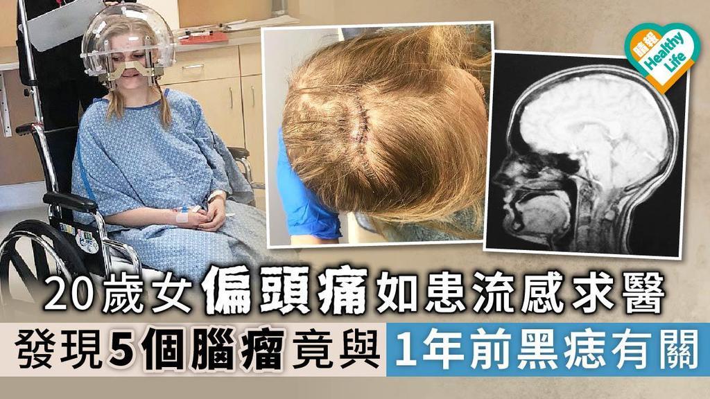 20歲女偏頭痛如患流感求醫 發現5個腦瘤竟與1年前黑痣有關
