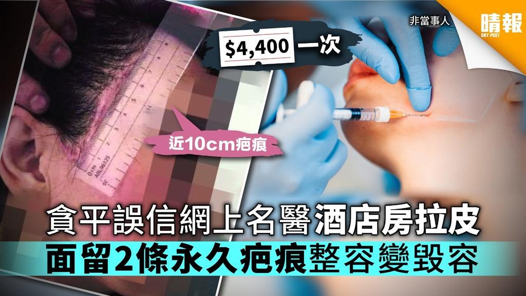 貪平光顧「酒店名醫」花$4400拉皮 面留2條永久疤痕整容變毀容