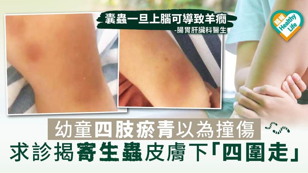 幼童四肢瘀青以為撞傷 求診揭寄生蟲皮膚下「四圍走」