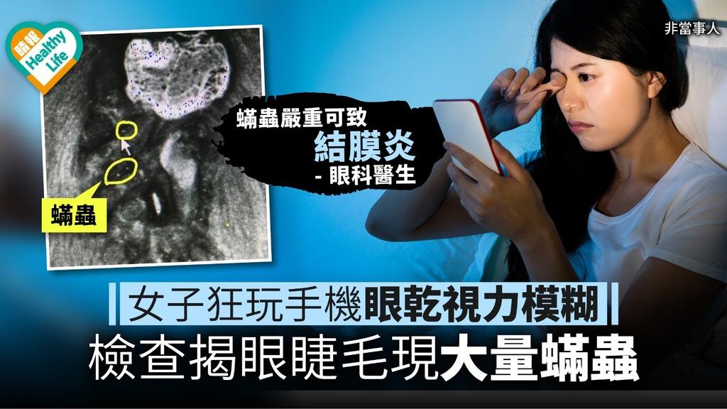 【低頭族注意】女子狂玩手機眼乾視力模糊 檢查揭眼睫毛現大量蟎蟲