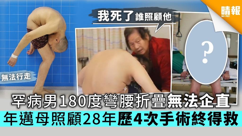 罕病男180度彎腰折疊無法企直 年邁母照顧28年歷4次手術終得救