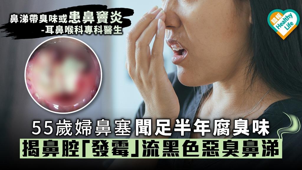 55歲婦鼻塞聞足半年腐臭味揭鼻腔「發霉」流黑色惡臭鼻涕