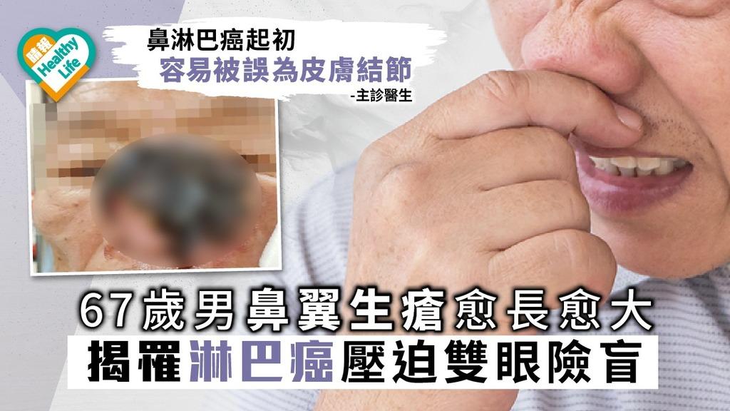 67歲男鼻翼生瘡愈長愈大 揭罹淋巴癌壓迫雙眼險盲