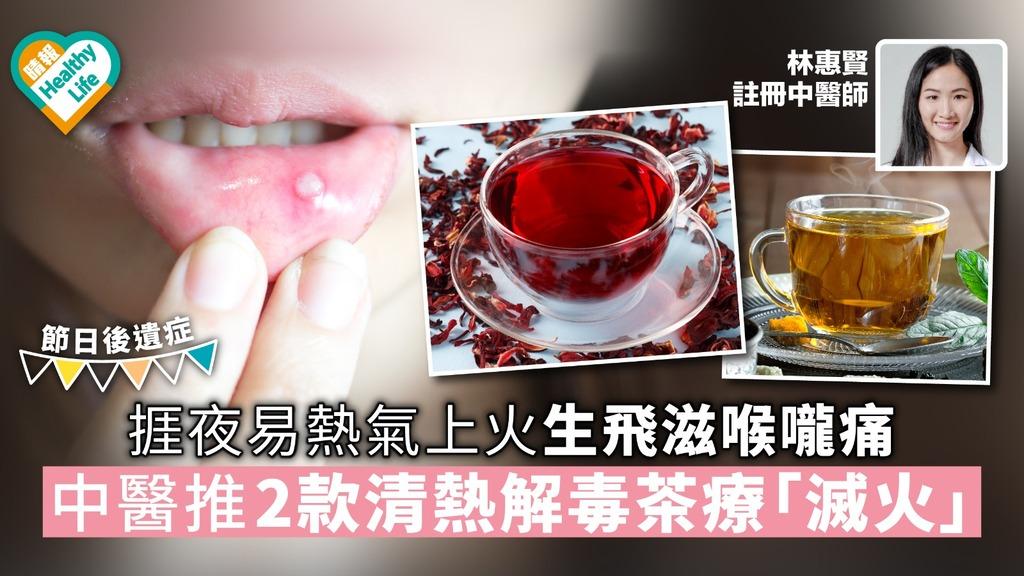 【節日後遺症】捱夜易熱氣上火生飛滋喉嚨痛 中醫推2款清熱解毒茶療「滅火」