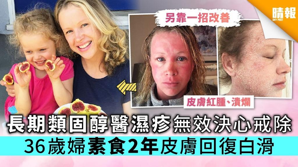 長期類固醇醫濕疹無效決心戒除 36歲婦素食2年皮膚回復白滑