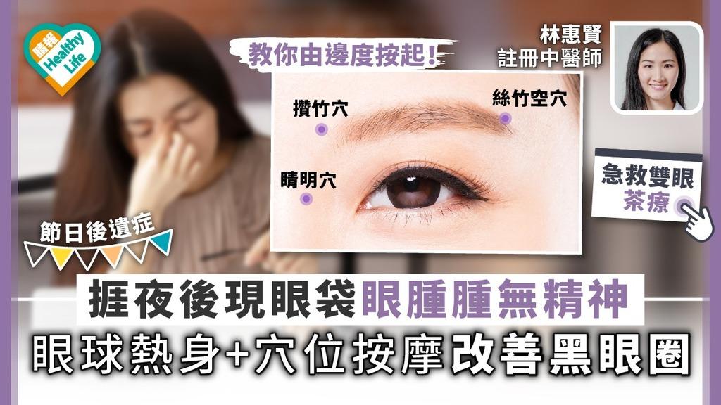 【節日後遺症】捱夜後現眼袋眼腫腫無精神 眼球熱身簡單穴位按摩急救雙眼