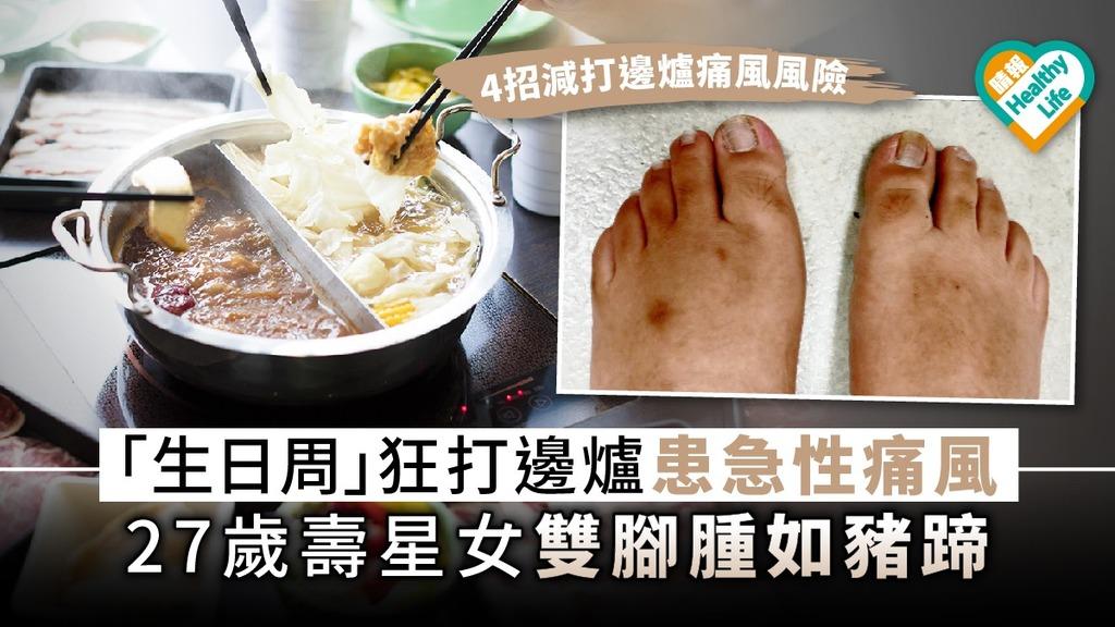 【 痛風年輕化】「生日周」狂打邊爐患急性痛風 27歲壽星女雙腳腫如豬蹄