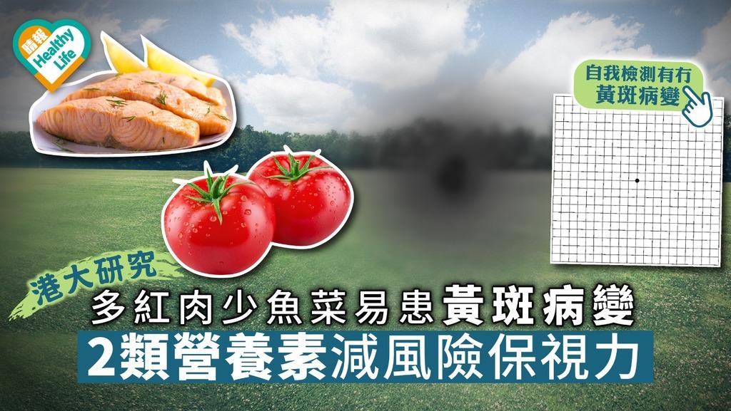 【港大研究】多紅肉少魚菜易患黃斑病變2大營養素減風險保視力