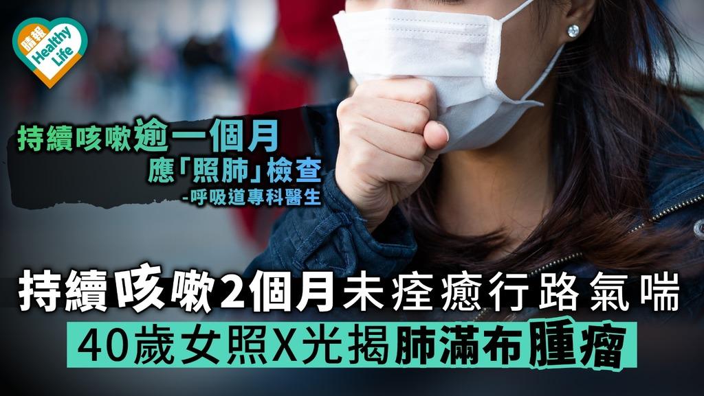 持續咳嗽2個月未痊癒 行路氣喘 40歲女照X光揭肺滿布腫瘤