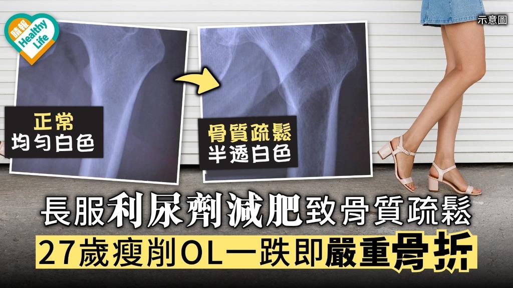 【減肥偏方】長服利尿劑減肥致骨質疏鬆 27歲瘦削OL一跌即嚴重骨折