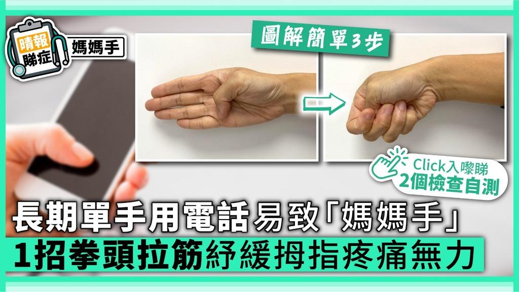 【狹窄性肌腱滑膜炎】長期單手用電話易致「媽媽手」 1招拳頭拉筋紓緩拇指疼痛無力【附2個檢查自測】