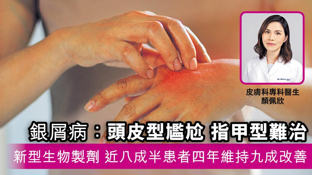 「銀屑病:頭皮型尷尬 指甲型難治 新型生物製劑 近八成半患者四年維持九成改善」
