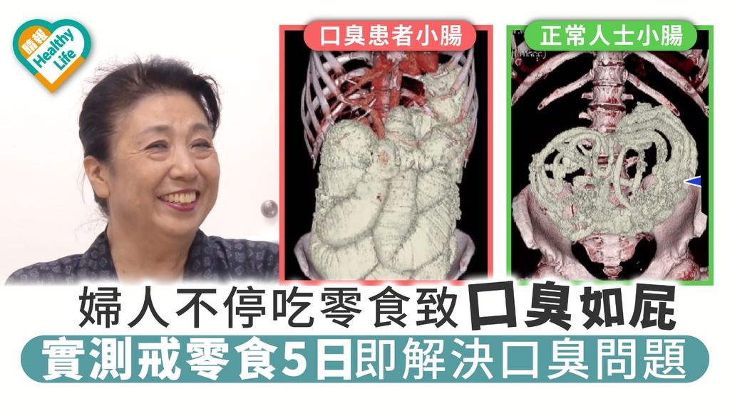 婦人不停吃零食致口臭如屁 實測戒零食5日即解決口臭問題