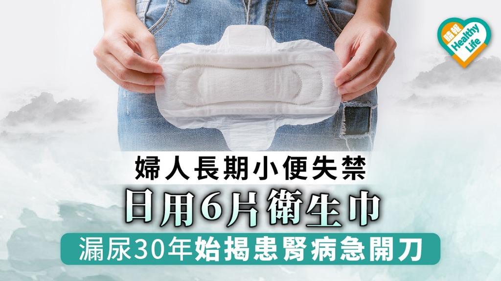 【重複腎】婦人長期小便失禁 日用6片衛生巾 漏尿30年始揭患腎病急開刀