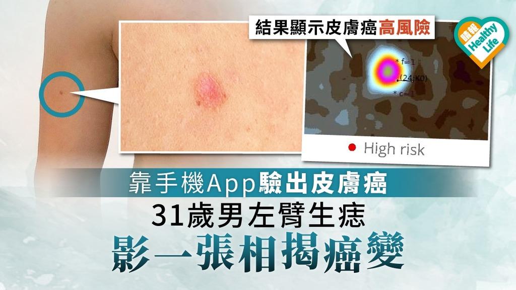 【黑色素瘤】31歲男靠手機App驗出皮膚癌 左臂生痣影一張相揭癌變