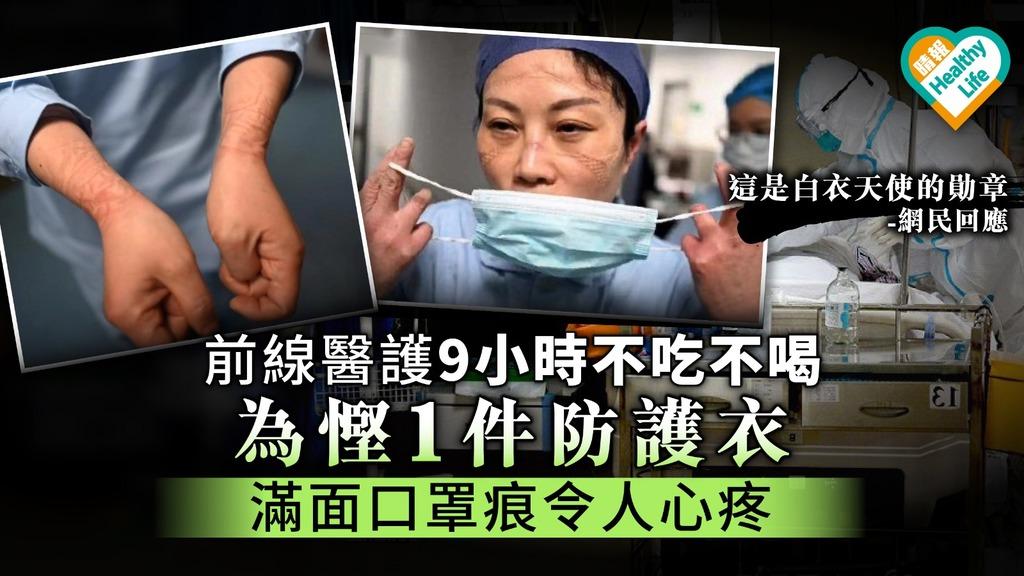 【武漢肺炎】前線醫護9小時不吃不喝為慳1件防護衣 滿面口罩痕令人心疼