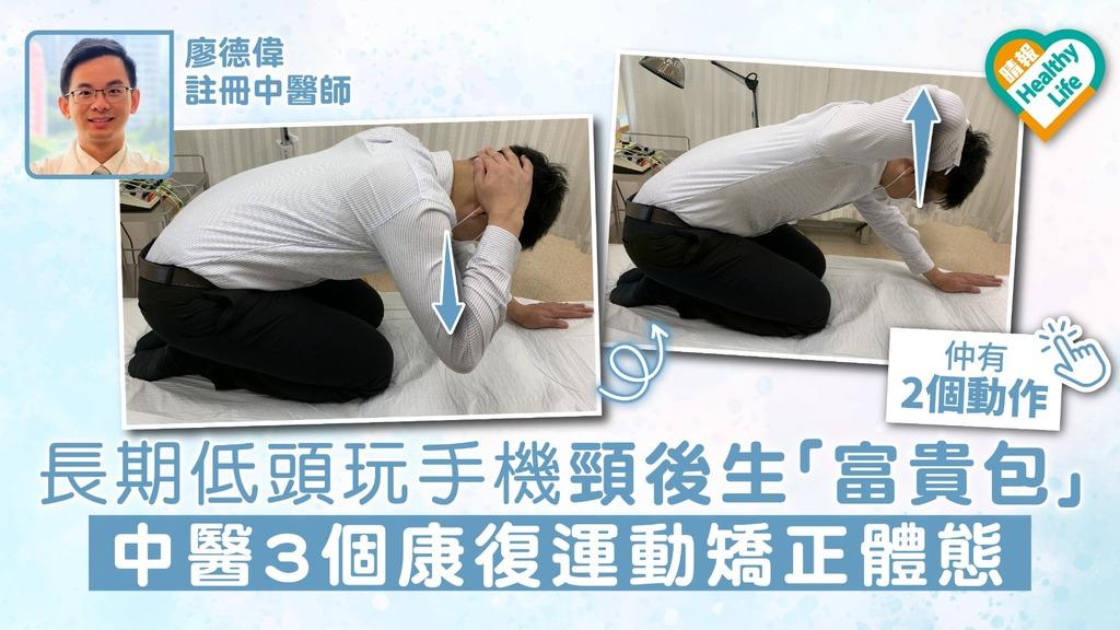 長期低頭玩手機頸後生「富貴包」 中醫3個康復運動矯正體態