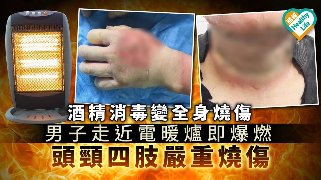 【防疫】酒精消毒變全身燒傷 男子走近電暖爐即爆燃 頭頸四肢嚴重燒傷