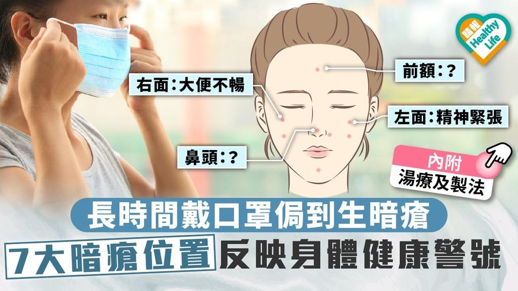 【戴口罩】長時間戴口罩侷到生暗瘡 7大暗瘡位置反映身體健康警號 (內附湯水)