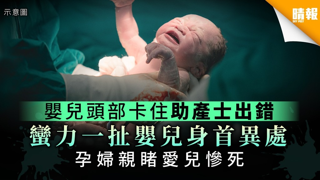 嬰兒頭部卡產道 助產士蠻力一扯身首異處 孕婦親睹愛兒慘死