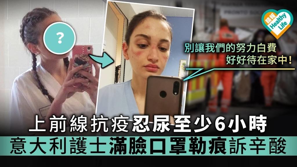 【歐洲疫情】上前線抗疫忍尿至少6小時 意大利護士自拍滿臉口罩勒痕訴辛酸