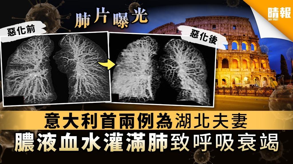 【X光肺片】意大利首兩例為湖北夫妻 膿液血水灌滿肺致呼吸衰竭