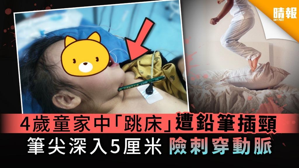【家居意外】4歲童家中「跳床」遭鉛筆插頸 筆尖深入5厘米 險刺穿動脈