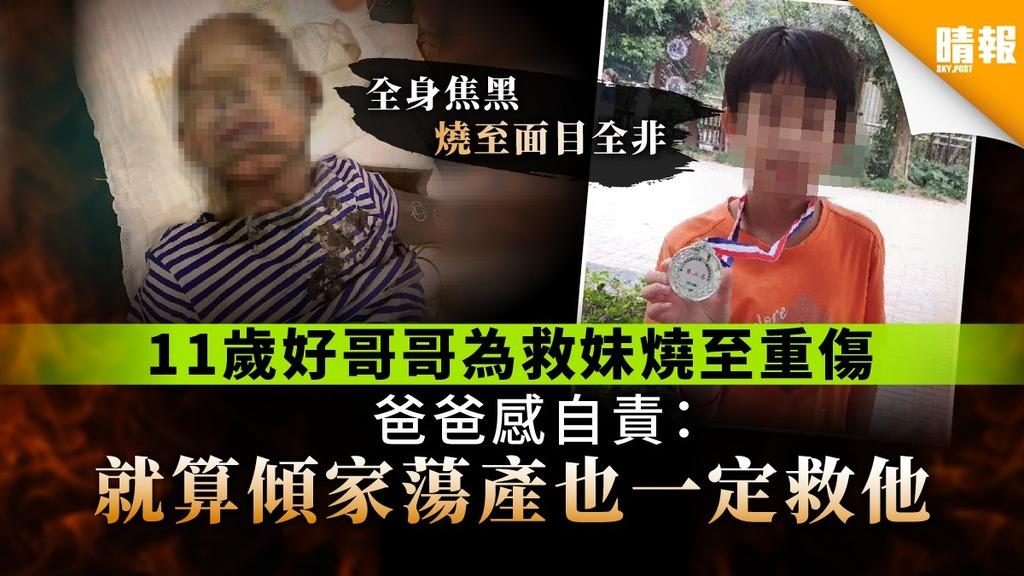 【手足情深】11歲好哥哥為救妹燒至重傷 爸爸感自責: 就算傾家蕩產也一定救他