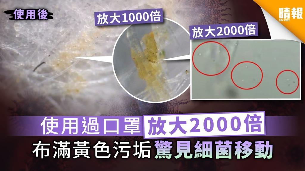 【口罩】使用過口罩放大2000倍 布滿黃色污垢驚見細菌移動
