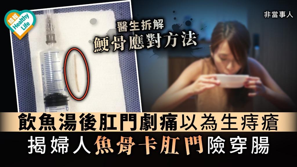 【鯁骨急救】飲魚湯後肛門劇痛以為生痔瘡 揭婦人魚骨卡肛門險穿腸【附正確應對方法】