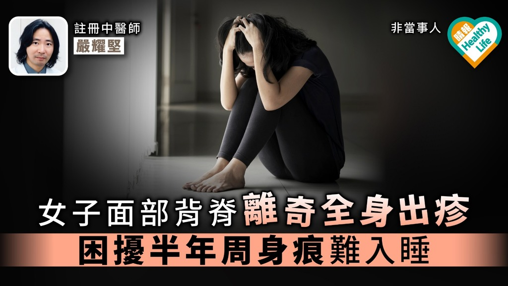 【慢性苔蘚樣糠疹】女子面部背脊離奇全身出疹 困擾半年周身痕難入睡