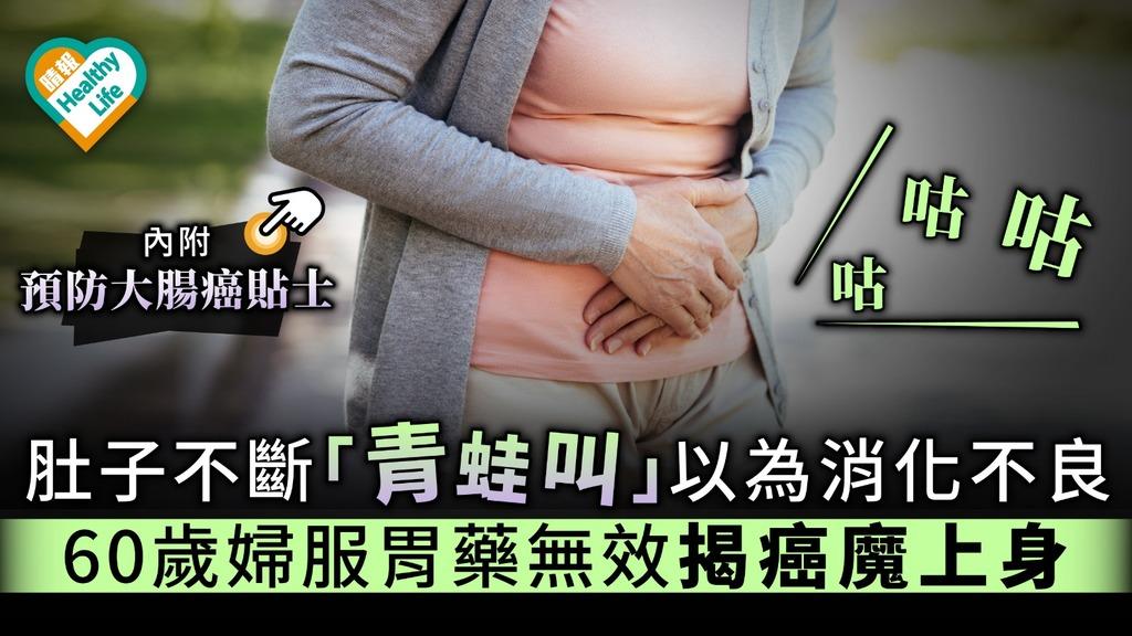 肚子不斷「青蛙叫」以為消化不良 60歲婦服胃藥無效揭癌魔上身